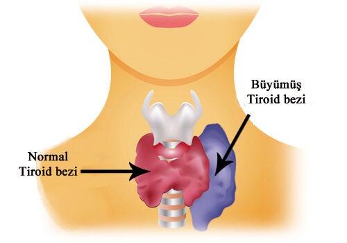 tiroid2