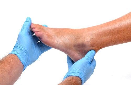 Ayak ve Bileklerde Şişme: Sebepleri ve Korunma Yöntemleri