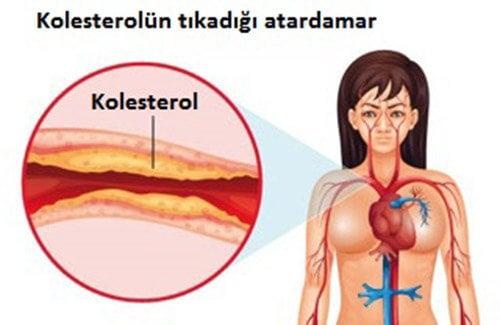 Kolesterol Düzeyi Nasıl Kontrol Altında Tutulabilir?