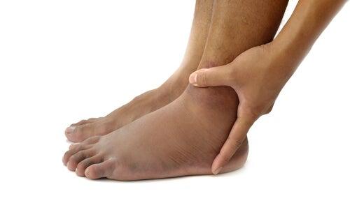 ayak ve bileklerde şişme