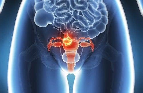 Rahim Kanseri Vakalarının %60'ı Önlenebilir