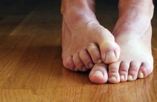 Tırnak Mantarı İçin Doğal Tedaviler