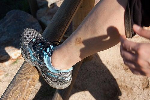 bacakta görülen egzama