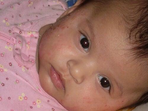 egzamalı bebek