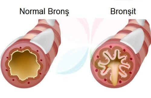 bronşit hastalıkları