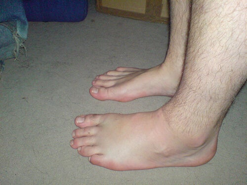 ödemli ayak bilekleri