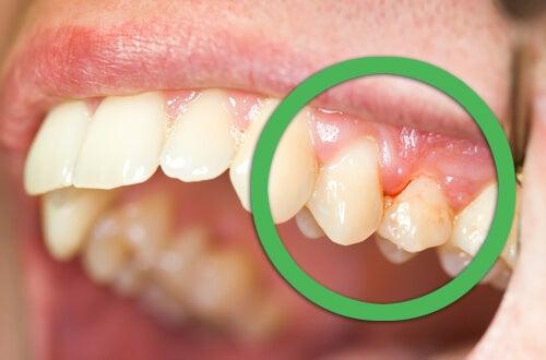 Dişeti Kanaması ve Sallanan Dişlere Doğal Tedaviler