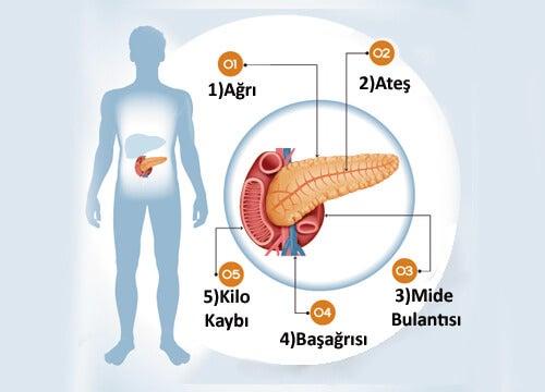 Pankreas Hastalıklarının 6 Belirtisi