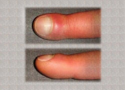 Parmakların Şişmesine Ne Sebep Olur?