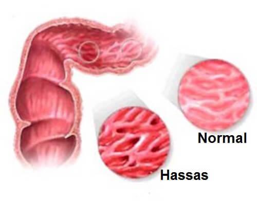 Hassas Bağırsak Sendromu Olanların Tüketmemesi Gereken Gıdalar