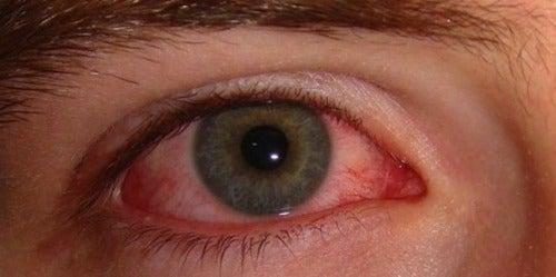 Göz Kanlanması: Nedenleri ve Basit Tedavi Yöntemleri