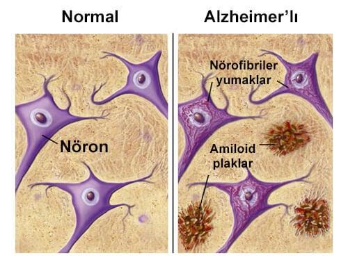 Alzheimer Hastalığından Koruyan Besinler
