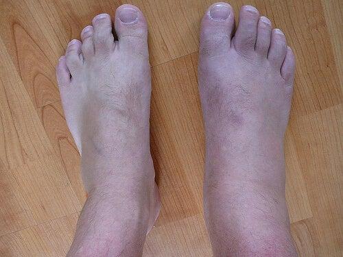 gut hastalığı ayaklar