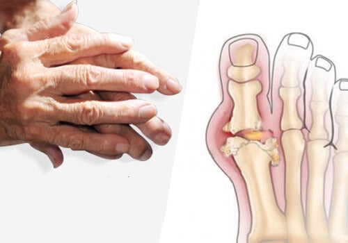 Artriti Tedavi Etmek için Öneriler