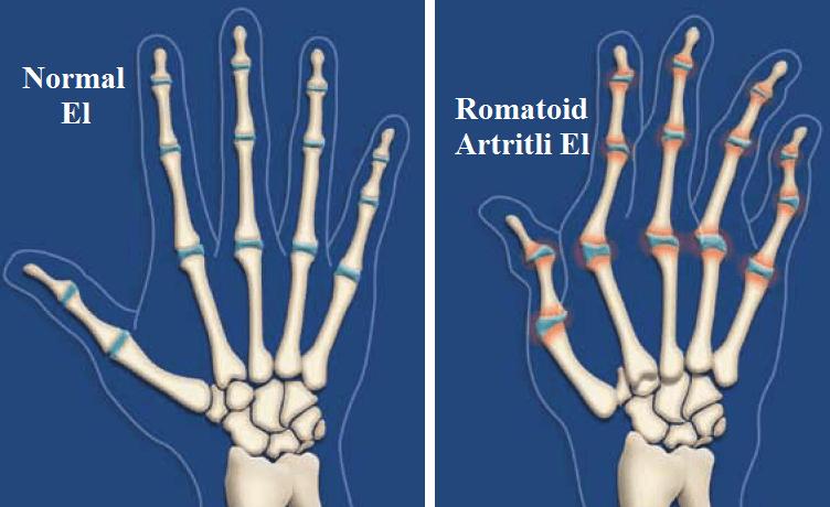 artritli el