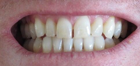 teeth tr