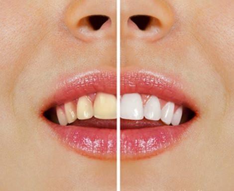 Doğal Malzemelerle Diş Beyazlatmak