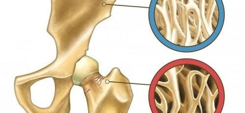 Osteoporozu Önlemek İçin Doğal Yollar