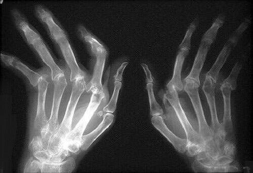 Romatoid Artrit Tedavisi İçin Doğal Çözümler