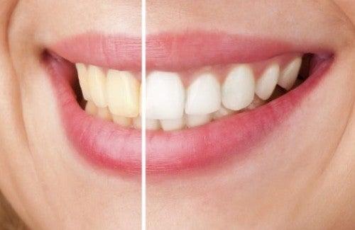 Doğal Yöntemlerle Diş Beyazlatma: Keşfedin