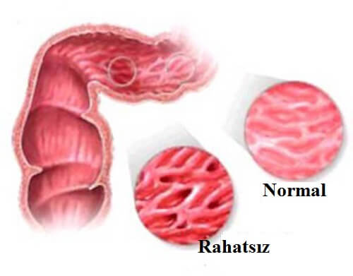 İrritabl bağırsak sendromundan nasıl kurtulur Hastalığın tedavisi