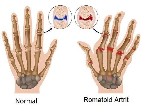 Artrit Hakkında Muhtemelen Bilmediğiniz 5 Şey