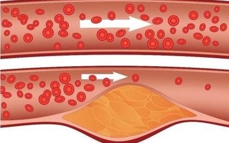 kolesterol kan akışı
