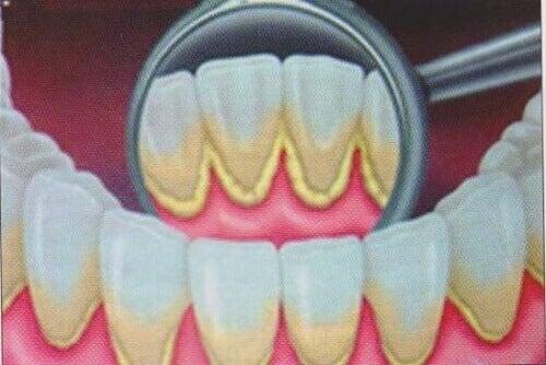 Doğal Yollarla Diş Plağından Kurtulmak
