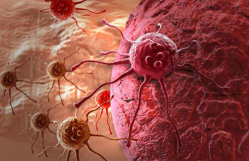 Kanser hücreleri