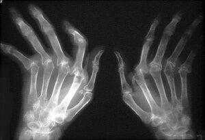 artrit ve az su içmek