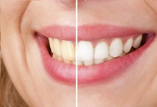 yarısı sarı yarısı beyaz diş