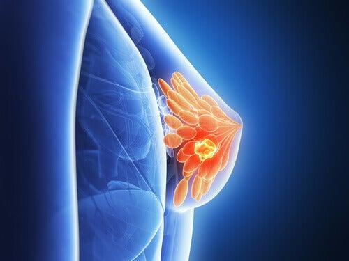 Sütyen Göğüs Kanserine Etki Eder mi?