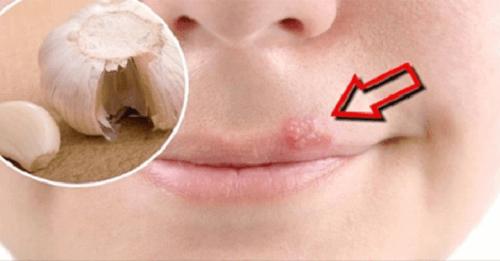 Herpes için en etkili çare nedir