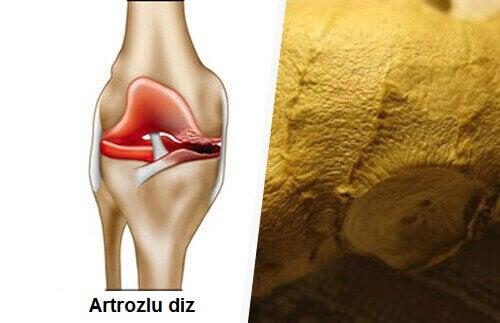 artriti-dogal-yollarla-tedavi-edin
