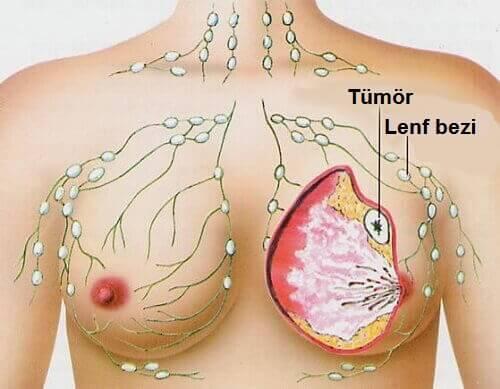 Kadınlarda En Sık Görülen 5 Kanser Türü