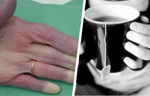 Soğuk Eller: Bilmeniz Gereken Bazı Muhtemel Sebepler