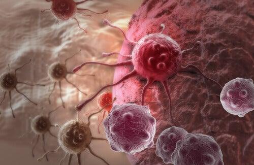 kanserli hücreler