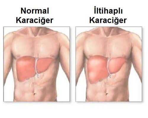Karaciğer İltihabı: Semptomlar ve Doğru Beslenme