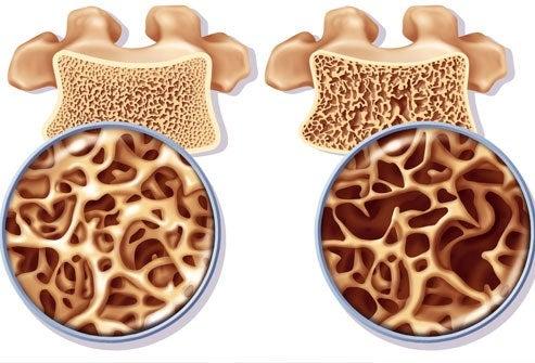 Kadınlarda Osteoporoz: Korunma ve Tedavi