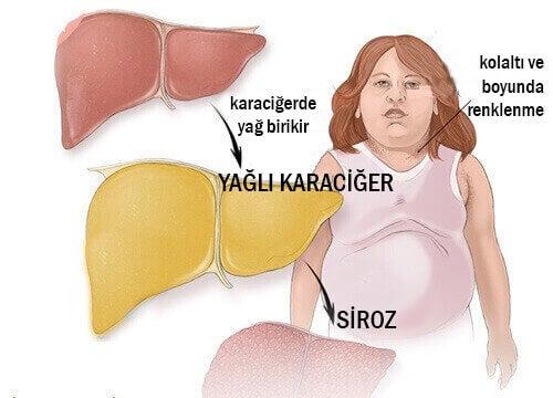 Karaciğer Yağlanmasının Belirtileri