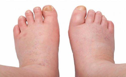 şişmiş-ayaklar