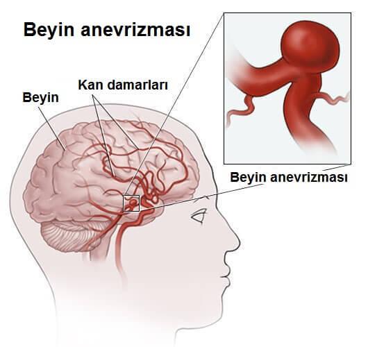anevrizma-2