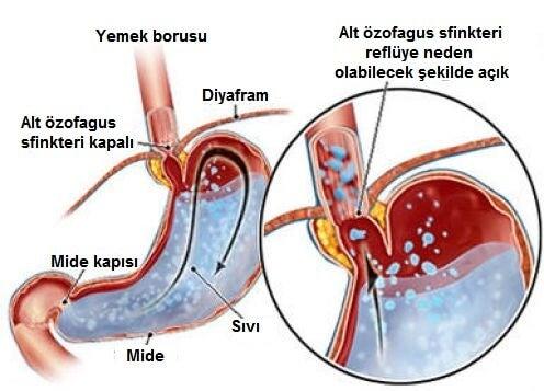 Asit Reflüsü Hastalığı ve Azaltmak için İpuçları