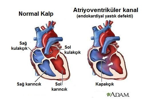Bilmeniz Gereken 6 Kalp Hırıltısı Semptomu