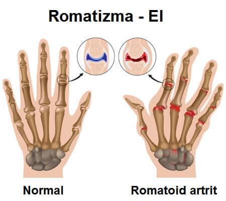 romatizmalı-el