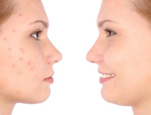 sivilceleri olan kadın ve pürüzsüz bir cilde sahip olan ikizi