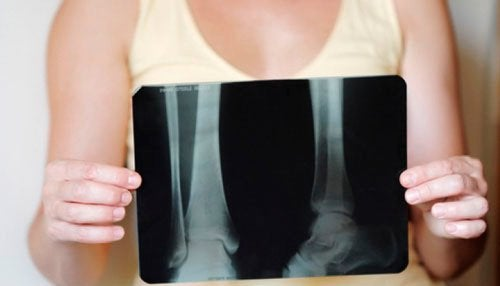 kemik kanseri röntgen