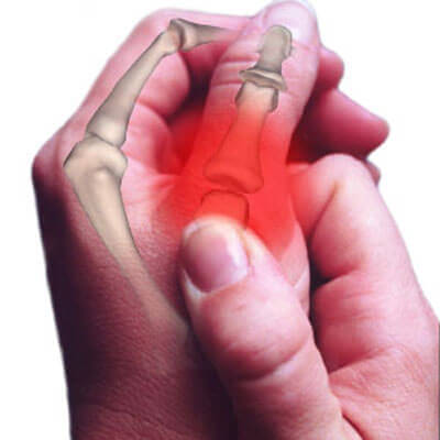 artrit parmak çıtlatma