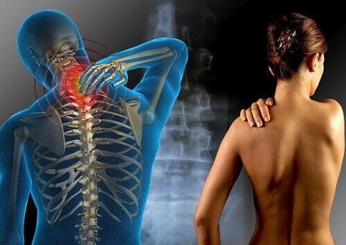 Fibromiyalji Tedavisi için Şifalı Bitkiler
