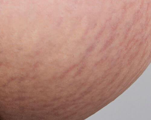 Vücutta Oluşan Çatlaklar İçin Ev Tedavileri